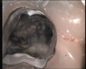 Zahn mit 4 Wurzelkanälen