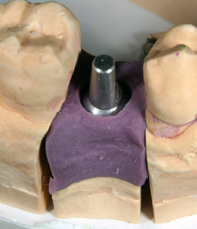 Zahnersatz mit Implantat - Zahnarztpraxis Dr. Exner