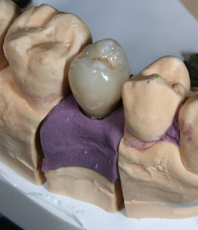 Zahnersatz mit Krone auf Imlantat