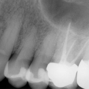 Zustand im Röntgenbild nach Wurzelfüllung